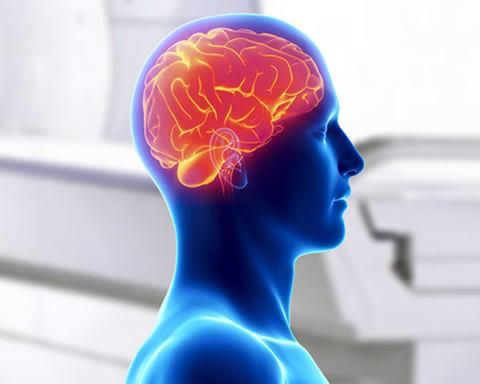 В каких случаях необходимо пройти МРТ головного мозга