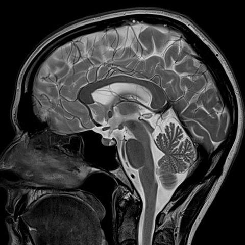 Где в Рязани сделать МРТ головного мозга недорого, особенности исследования и цены