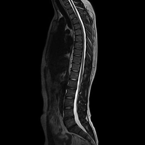 Нужна ли специальная подготовка к МРТ позвоночника?