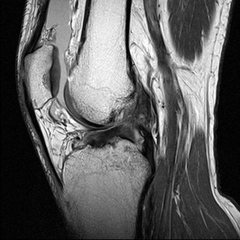 МРТ суставов - показания к проведению, особенности исследования, где пройти в Рязани